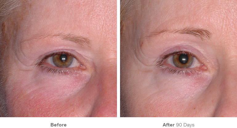 Karesculpt Kare Plastic Surgery Eyebrow Lift with Ultherapy