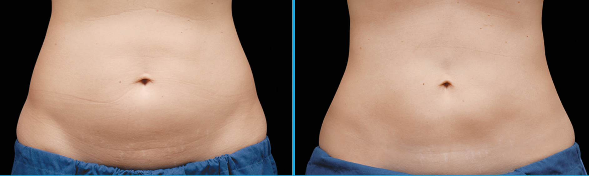 Coolsculpting Abdomen Before and After in Santa Monica