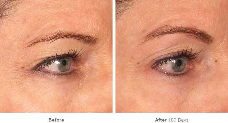 Karesculpt Ultherapy Eyebrow Lift in Santa Monica on Montana Avenue