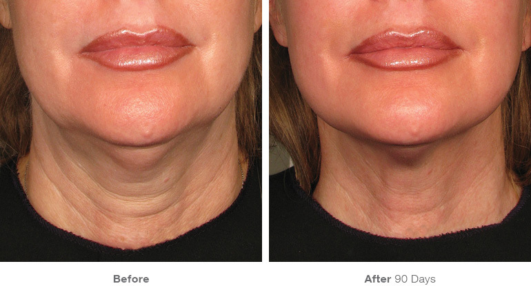 Ultherapy Before and After Photos for Neck Lift in Santa Monica at Karesculpt on Montana Avenue