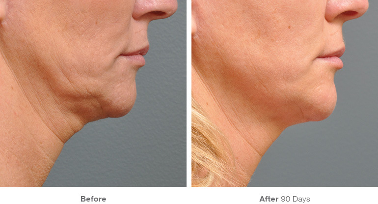 Neck lift and Face lift in Santa Monica at Kare Plastic Surgery