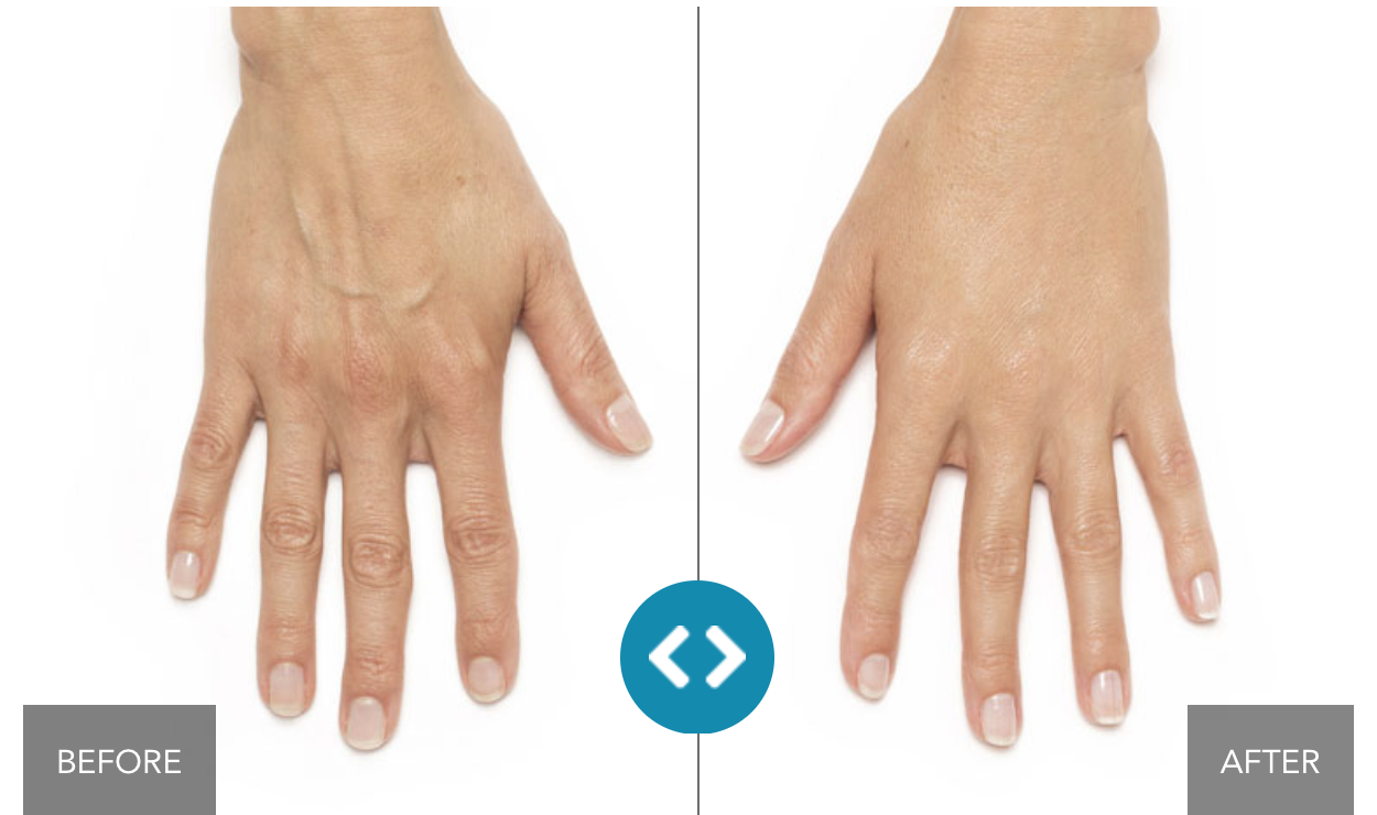 Radiesse Hand Rejuvenation in Santa Monica